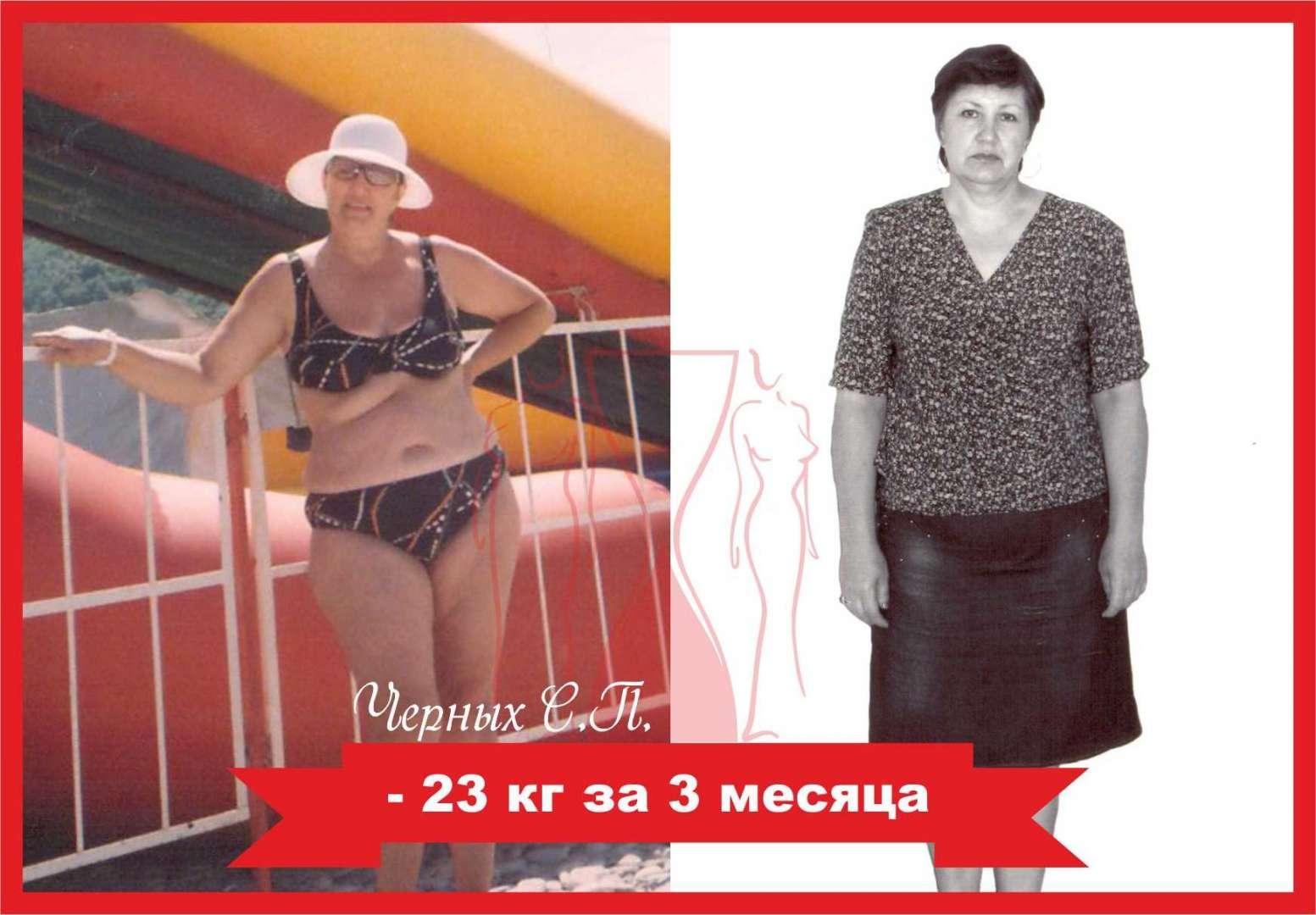 Славянская Клиника Центр Похудения. Славянская клиника: авторская методика похудения