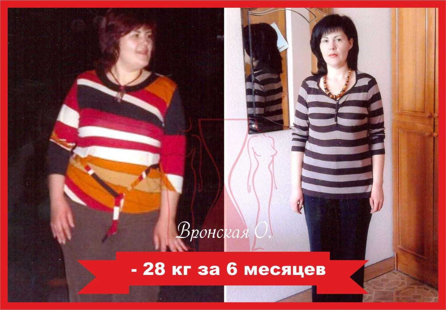Челябинск клиника для похудения
